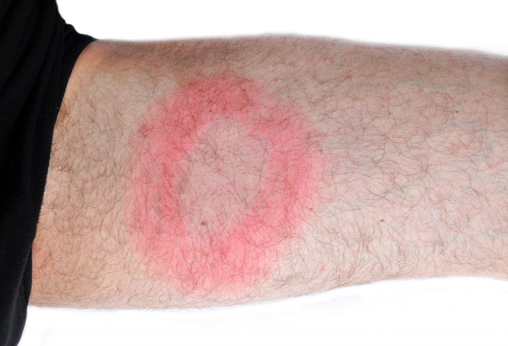 Czerwona plama z białym środkiem, na przedramieniu